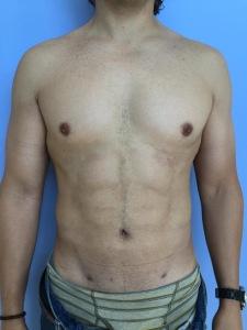 Caso clínico de liposucción 4-D operado en Mérida Yucatan por el Dr. Durán.
